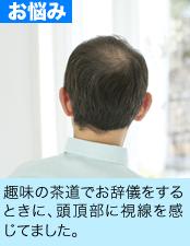 趣味の茶道でお辞儀をするときに、頭頂部に視線を感じてました。